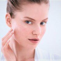 traces d'acné